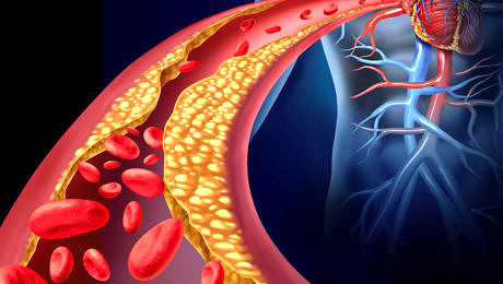 Does cholesterol cause heart disease